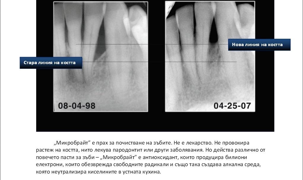 грижа за зъбите и устната кухина